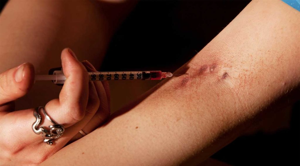 picture of person injecting heroin track marks