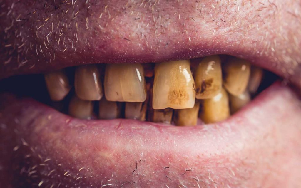 Crack & Tooth Decay   Effects Of Crack On Oral Health