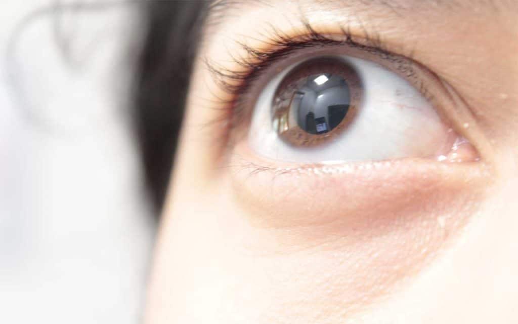Opiates, Eyes, & Pupils   What Do Opioid Eyes Look Like?