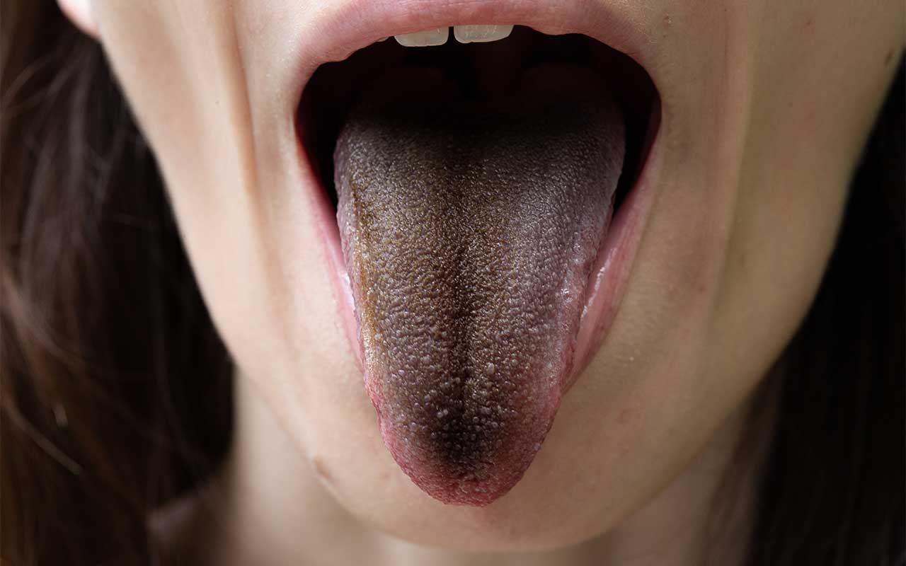 Black Tongue & Alcohol Abuse | Causes, Symptoms, & Treatment
