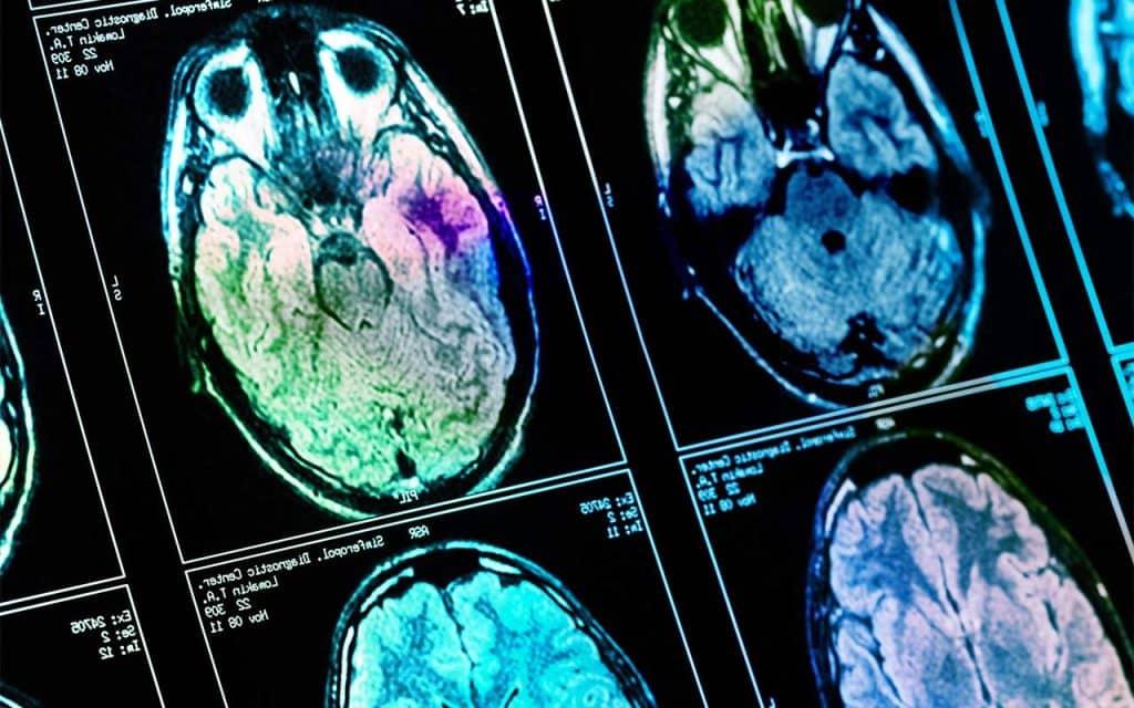 Does Marijuana Kill Brain Cells?