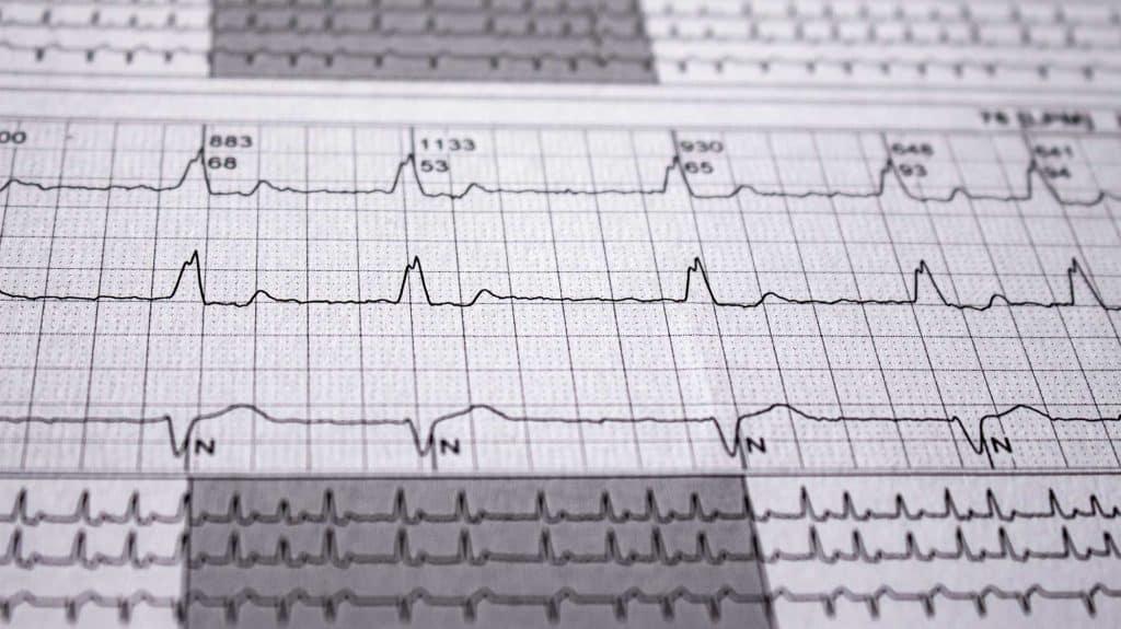 Alcohol And Heart Arrhythmia | Can Drinking Cause Heart Arrhythmia?