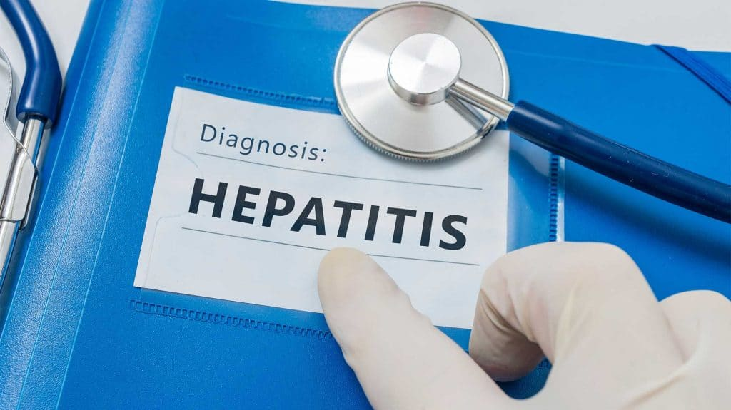 Alcohol-Induced Hepatitis | Signs & Symptoms